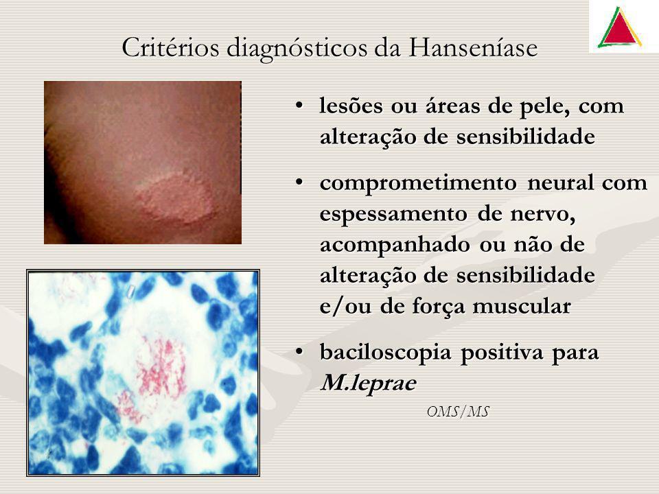 Critérios diagnósticos da Hanseníase lesões ou áreas de pele, com alteração de sensibilidade comprometimento neural com espessamento de nervo, acompan