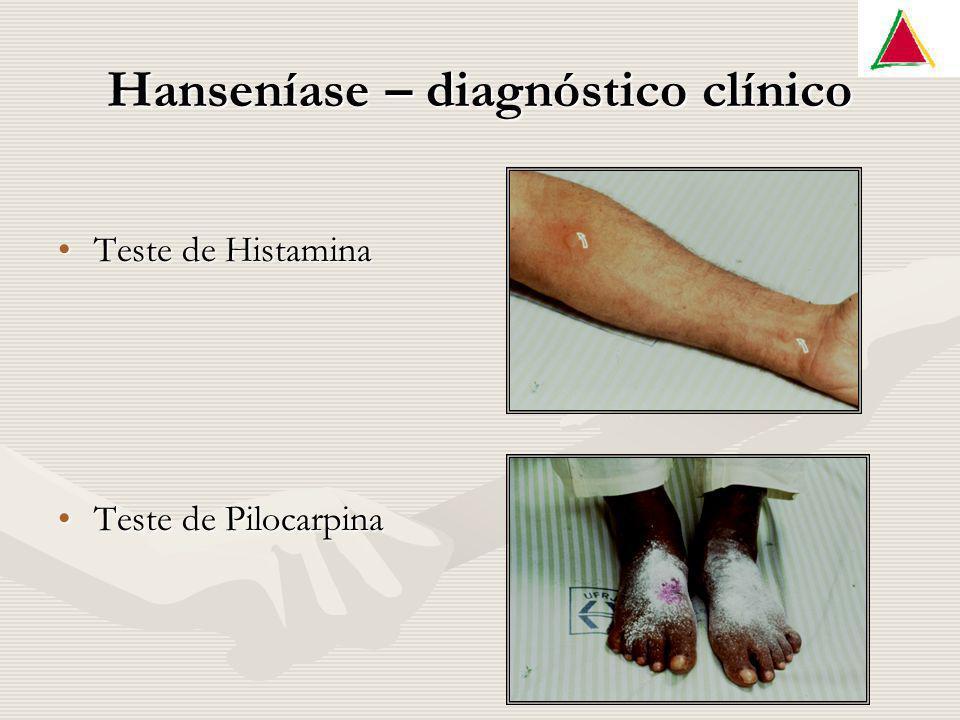 Hanseníase – diagnóstico clínico Teste de HistaminaTeste de Histamina Teste de PilocarpinaTeste de Pilocarpina