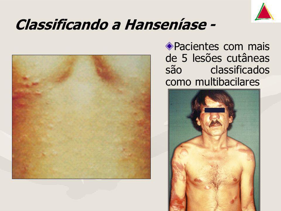 Classificando a Hanseníase - Pacientes com mais de 5 lesões cutâneas são classificados como multibacilares