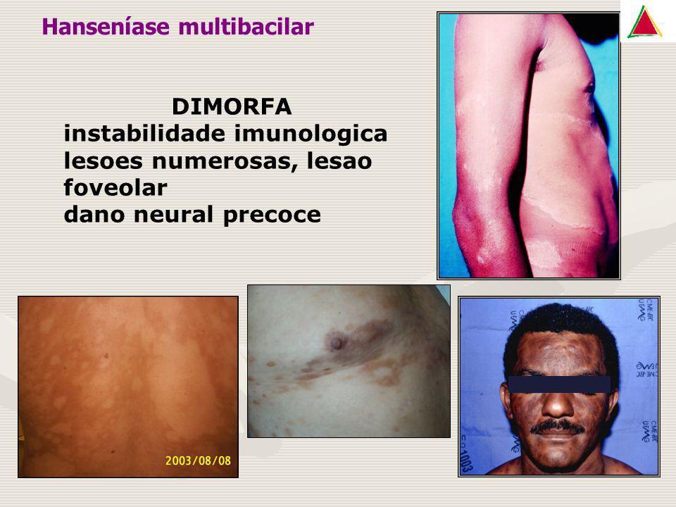 DIMORFA instabilidade imunologica lesoes numerosas, lesao foveolar dano neural precoce Hanseníase multibacilar