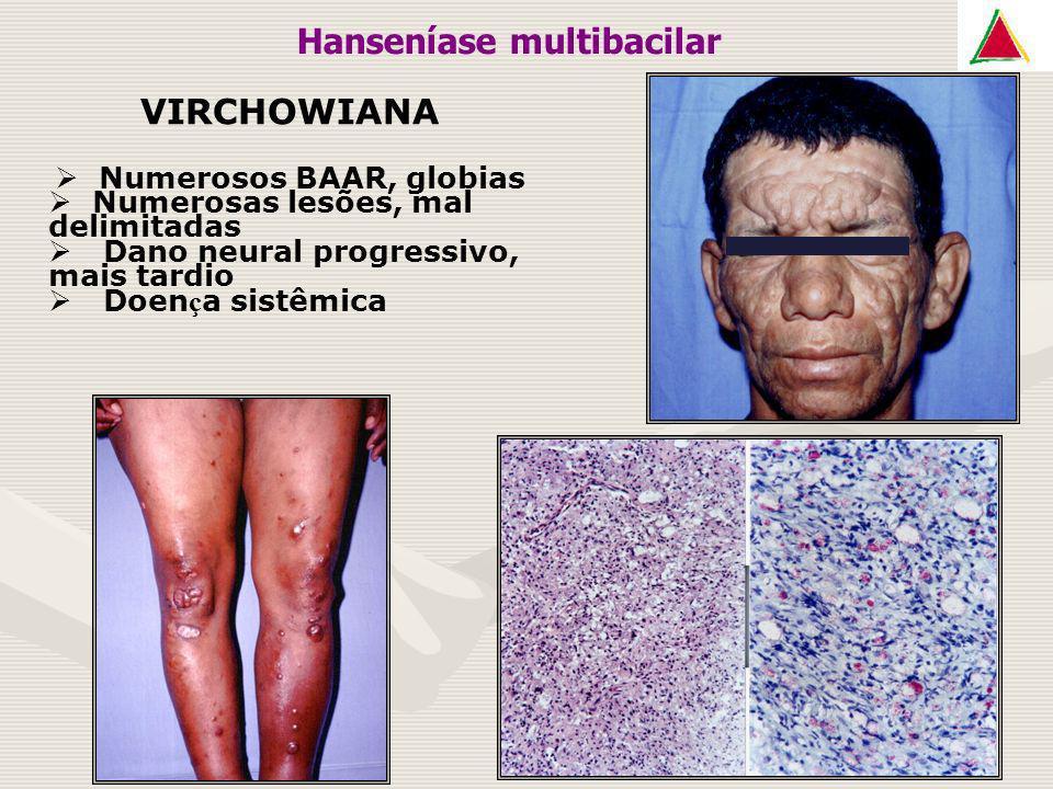VIRCHOWIANA Numerosos BAAR, globias Numerosas lesões, mal delimitadas Dano neural progressivo, mais tardio Doen ç a sistêmica Hanseníase multibacilar