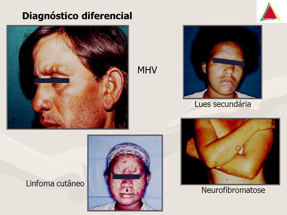 Diagnóstico diferencial MHV Linfoma cutâneo Neurofibromatose Lues secundária