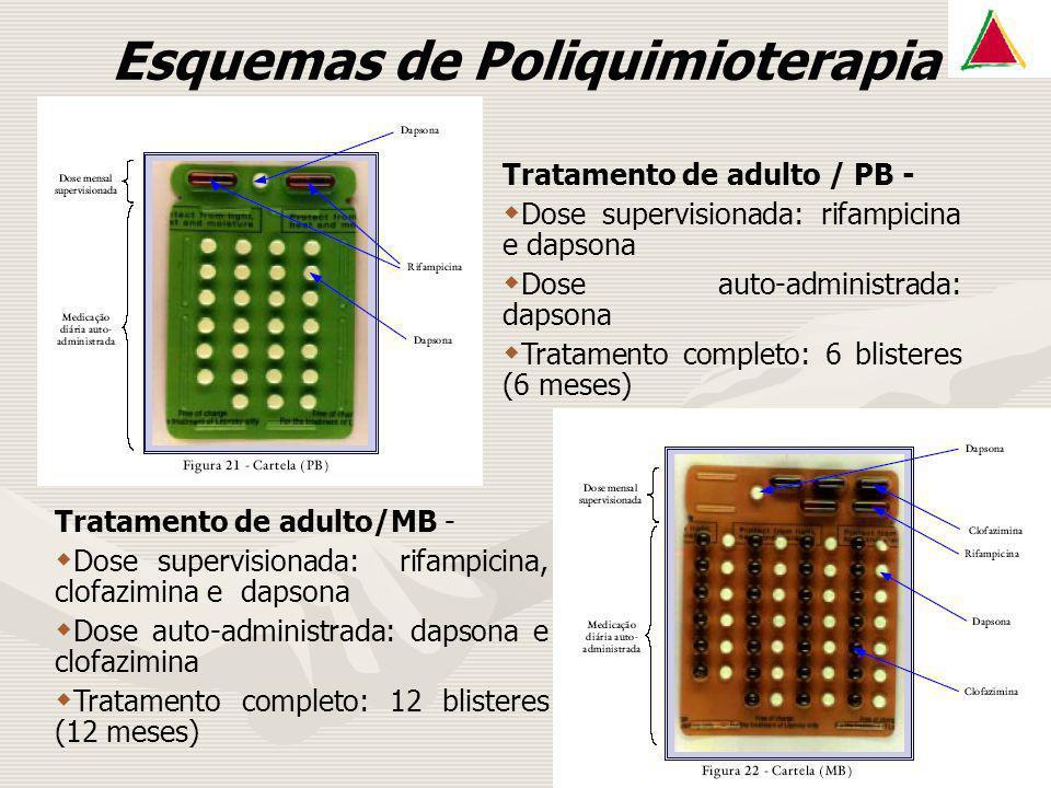 Esquemas de Poliquimioterapia Tratamento de adulto / PB - Dose supervisionada: rifampicina e dapsona Dose auto-administrada: dapsona Tratamento comple