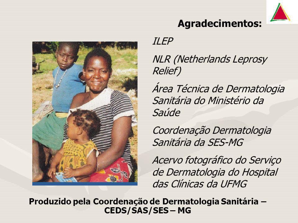 Agradecimentos: ILEP NLR (Netherlands Leprosy Relief) Área Técnica de Dermatologia Sanitária do Ministério da Saúde Coordenação Dermatologia Sanitária