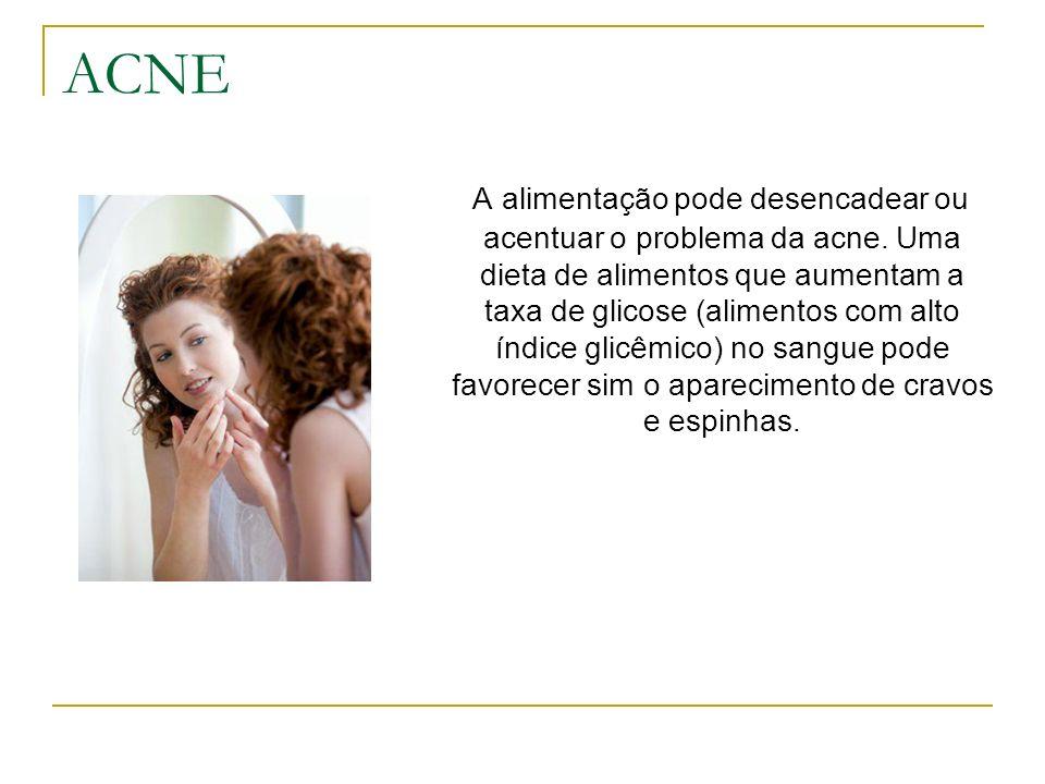 ACNE A alimentação pode desencadear ou acentuar o problema da acne. Uma dieta de alimentos que aumentam a taxa de glicose (alimentos com alto índice g