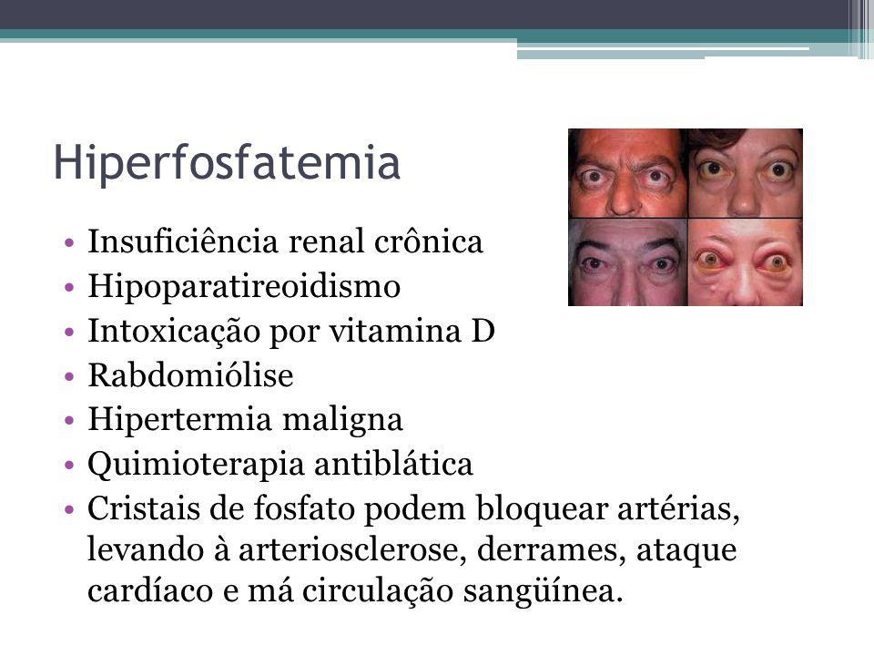 Hiperfosfatemia Insuficiência renal crônica Hipoparatireoidismo Intoxicação por vitamina D Rabdomiólise Hipertermia maligna Quimioterapia antiblática