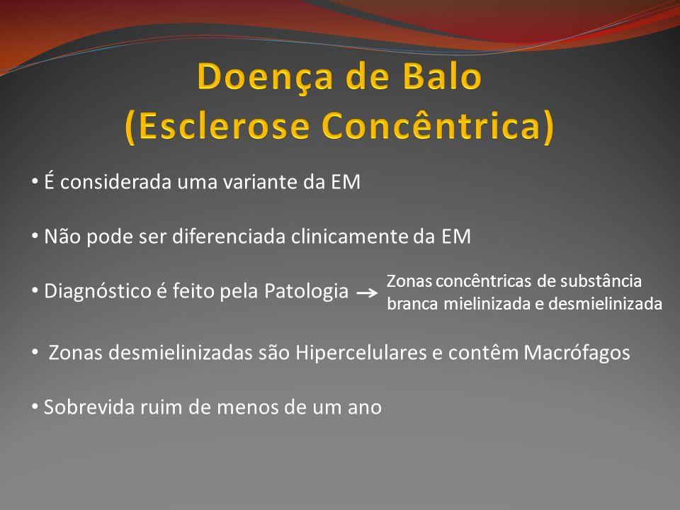 É considerada uma variante da EM Não pode ser diferenciada clinicamente da EM Diagnóstico é feito pela Patologia Zonas desmielinizadas são Hipercelula