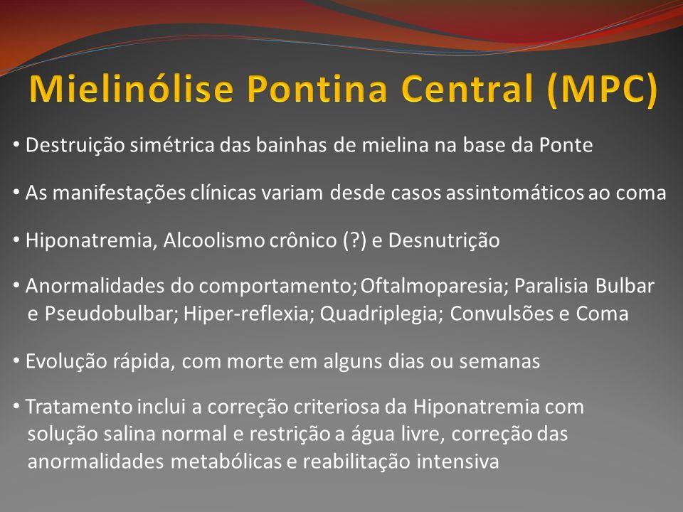 Destruição simétrica das bainhas de mielina na base da Ponte As manifestações clínicas variam desde casos assintomáticos ao coma Hiponatremia, Alcooli