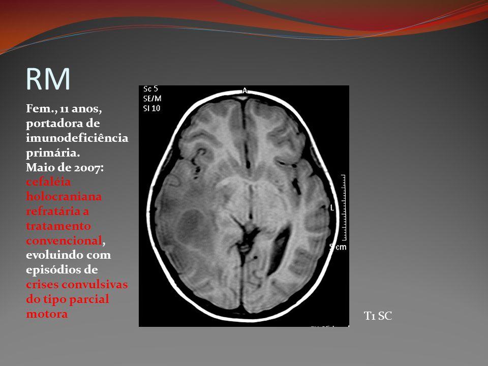 RM T1 SC Fem., 11 anos, portadora de imunodeficiência primária. Maio de 2007: cefaléia holocraniana refratária a tratamento convencional, evoluindo co