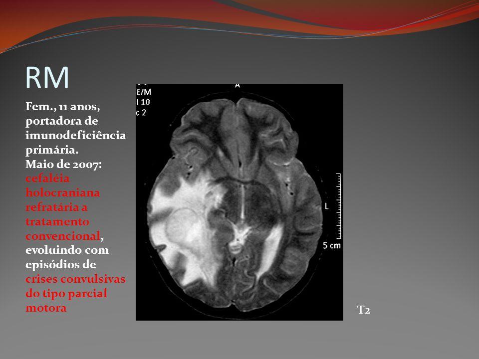 RM T2 Fem., 11 anos, portadora de imunodeficiência primária. Maio de 2007: cefaléia holocraniana refratária a tratamento convencional, evoluindo com e