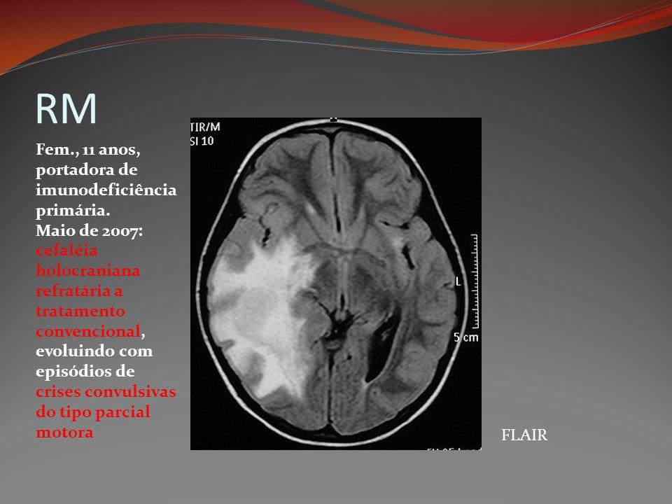 RM FLAIR Fem., 11 anos, portadora de imunodeficiência primária. Maio de 2007: cefaléia holocraniana refratária a tratamento convencional, evoluindo co