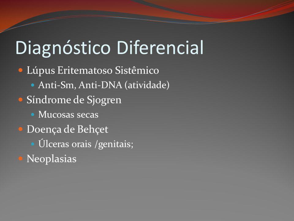 Diagnóstico Diferencial Lúpus Eritematoso Sistêmico Anti-Sm, Anti-DNA (atividade) Síndrome de Sjogren Mucosas secas Doença de Behçet Úlceras orais /ge