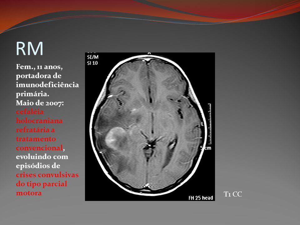 RM T1 CC Fem., 11 anos, portadora de imunodeficiência primária. Maio de 2007: cefaléia holocraniana refratária a tratamento convencional, evoluindo co