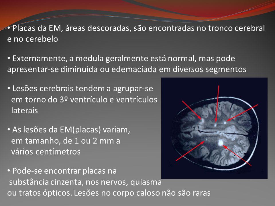 Placas da EM, áreas descoradas, são encontradas no tronco cerebral e no cerebelo Externamente, a medula geralmente está normal, mas pode apresentar-se