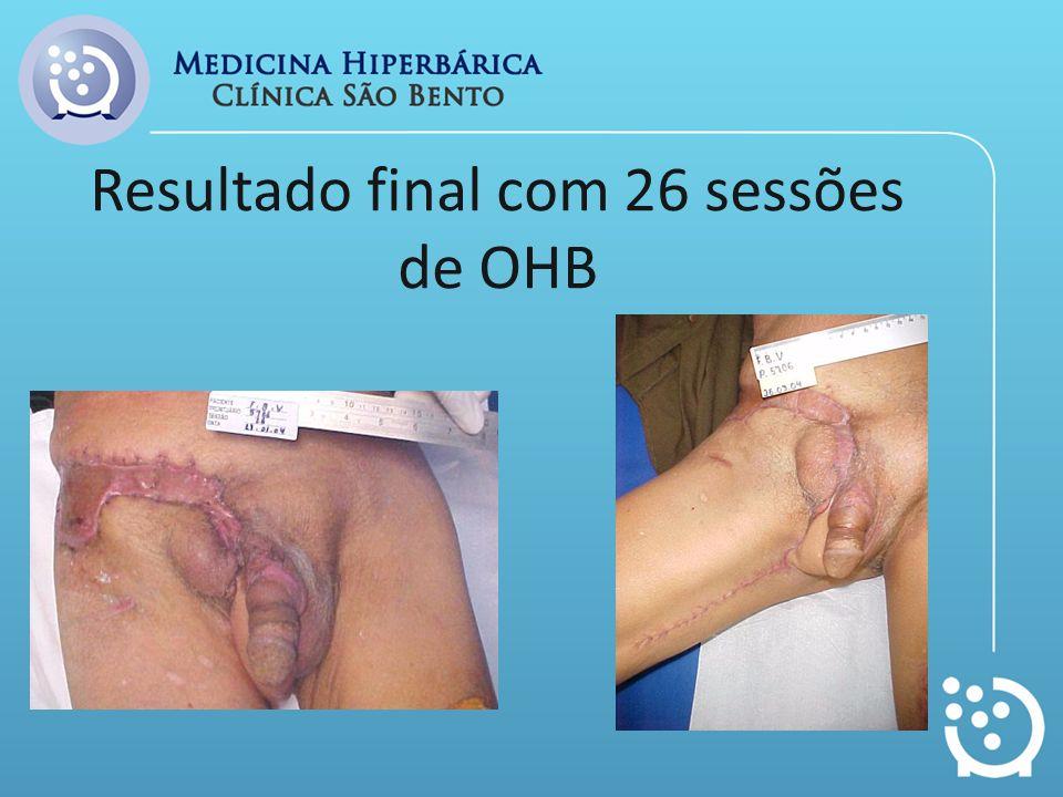 Resultado final com 26 sessões de OHB