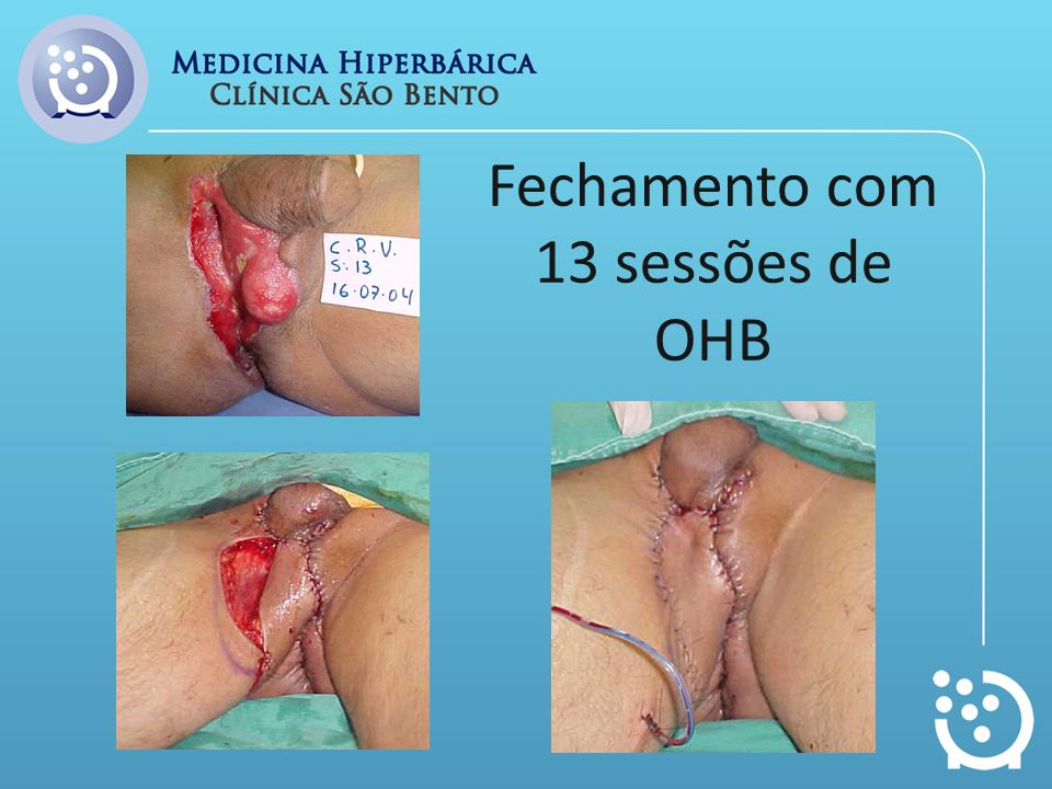 Fechamento com 13 sessões de OHB