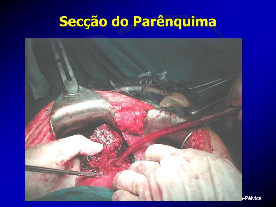 Serviço de Cirurgia Abdomino-Pélvica UIO