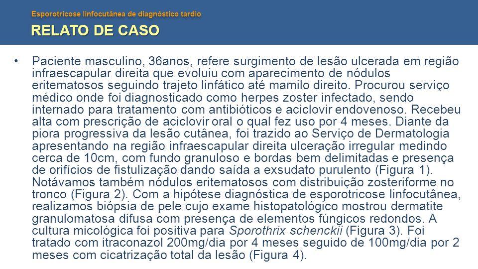 Esporotricose linfocutânea de diagnóstico tardio RELATO DE CASO Paciente masculino, 36anos, refere surgimento de lesão ulcerada em região infraescapul