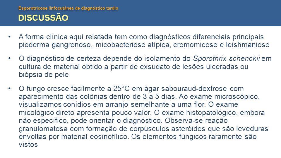 Esporotricose linfocutânea de diagnóstico tardio DISCUSSÃO O itraconazol é a droga de escolha na dose de 100 a 200mg por dia durante 3 a 6meses.