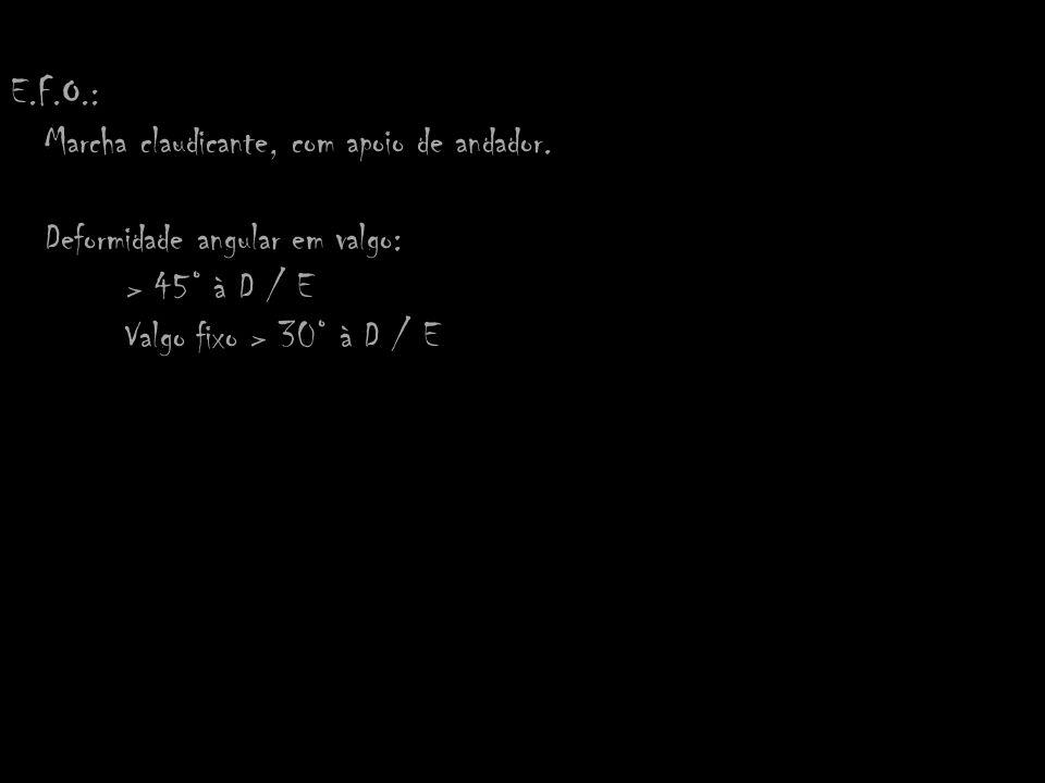 E.F.O.: Marcha claudicante, com apoio de andador. Deformidade angular em valgo: > 45° à D / E Valgo fixo > 30° à D / E