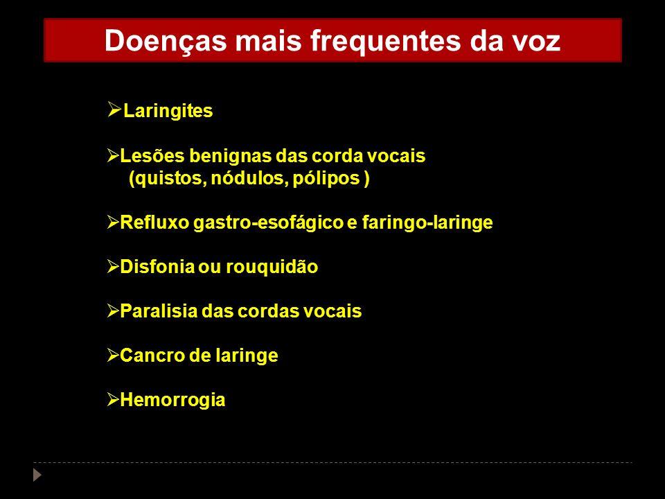 Doenças mais frequentes da voz Laringites Lesões benignas das corda vocais (quistos, nódulos, pólipos ) Refluxo gastro-esofágico e faringo-laringe Dis