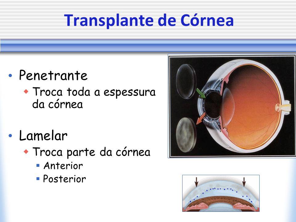 Penetrante Troca toda a espessura da córnea Lamelar Troca parte da córnea Anterior Posterior Transplante de Córnea