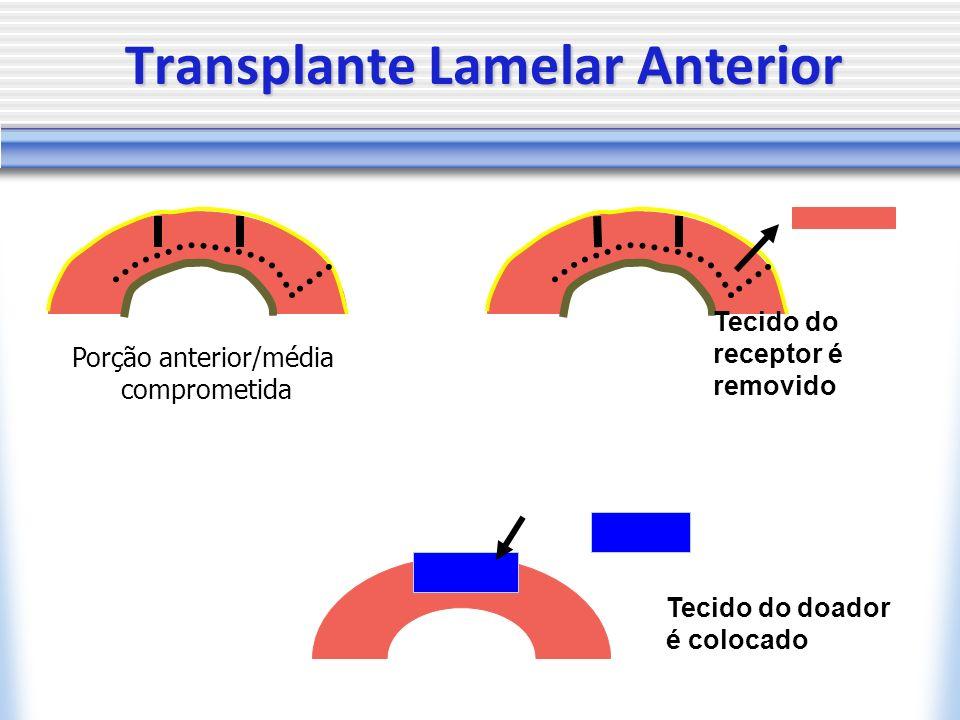 Tecido do receptor é removido Porção anterior/média comprometida Tecido do doador é colocado Transplante Lamelar Anterior
