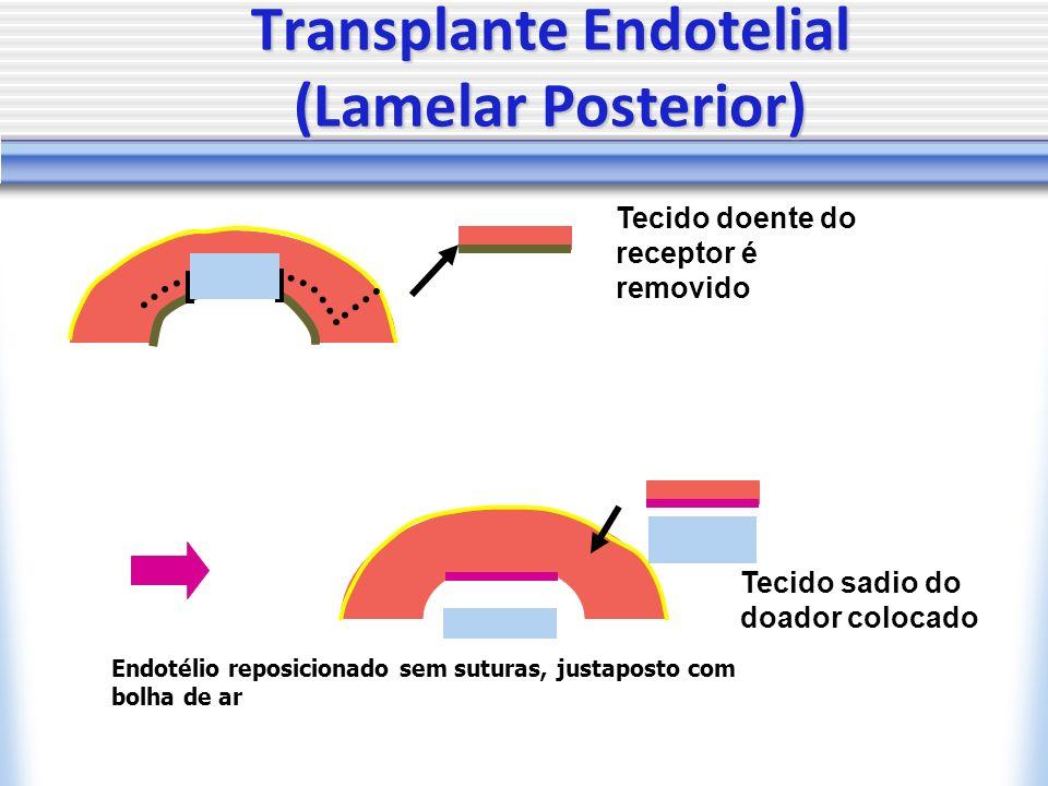 Transplante Endotelial (Lamelar Posterior) Tecido doente do receptor é removido Tecido sadio do doador colocado Endotélio reposicionado sem suturas, justaposto com bolha de ar