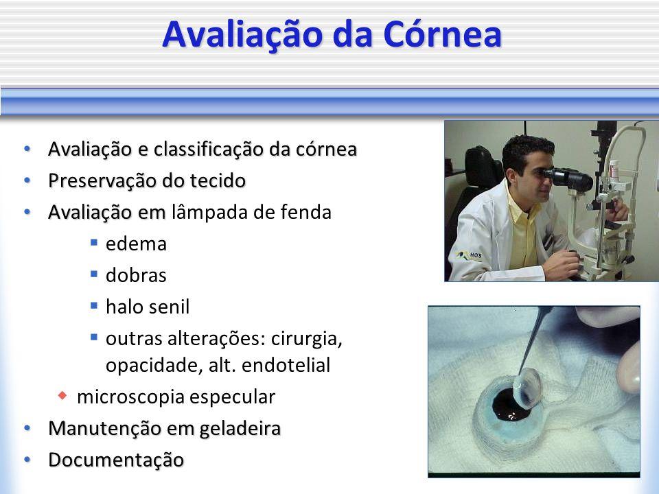 Avaliação da Córnea Avaliação e classificação da córnea Avaliação e classificação da córnea Preservação do tecido Preservação do tecido Avaliação em A