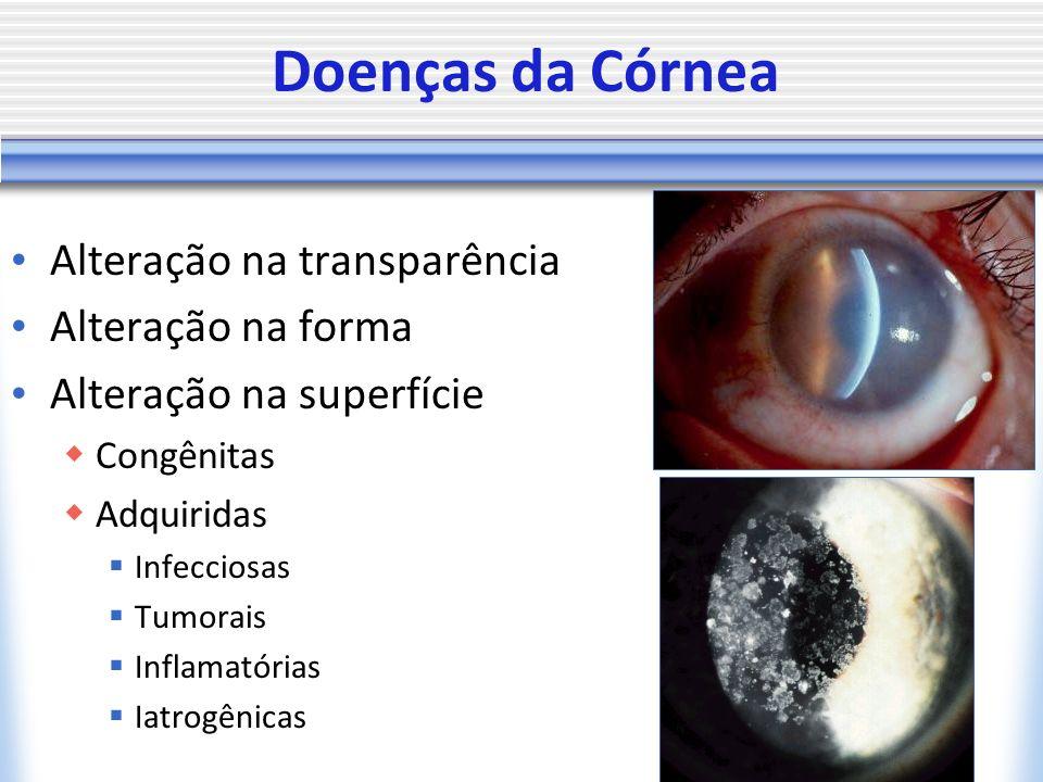 Doenças da Córnea Alteração na transparência Alteração na forma Alteração na superfície Congênitas Adquiridas Infecciosas Tumorais Inflamatórias Iatro