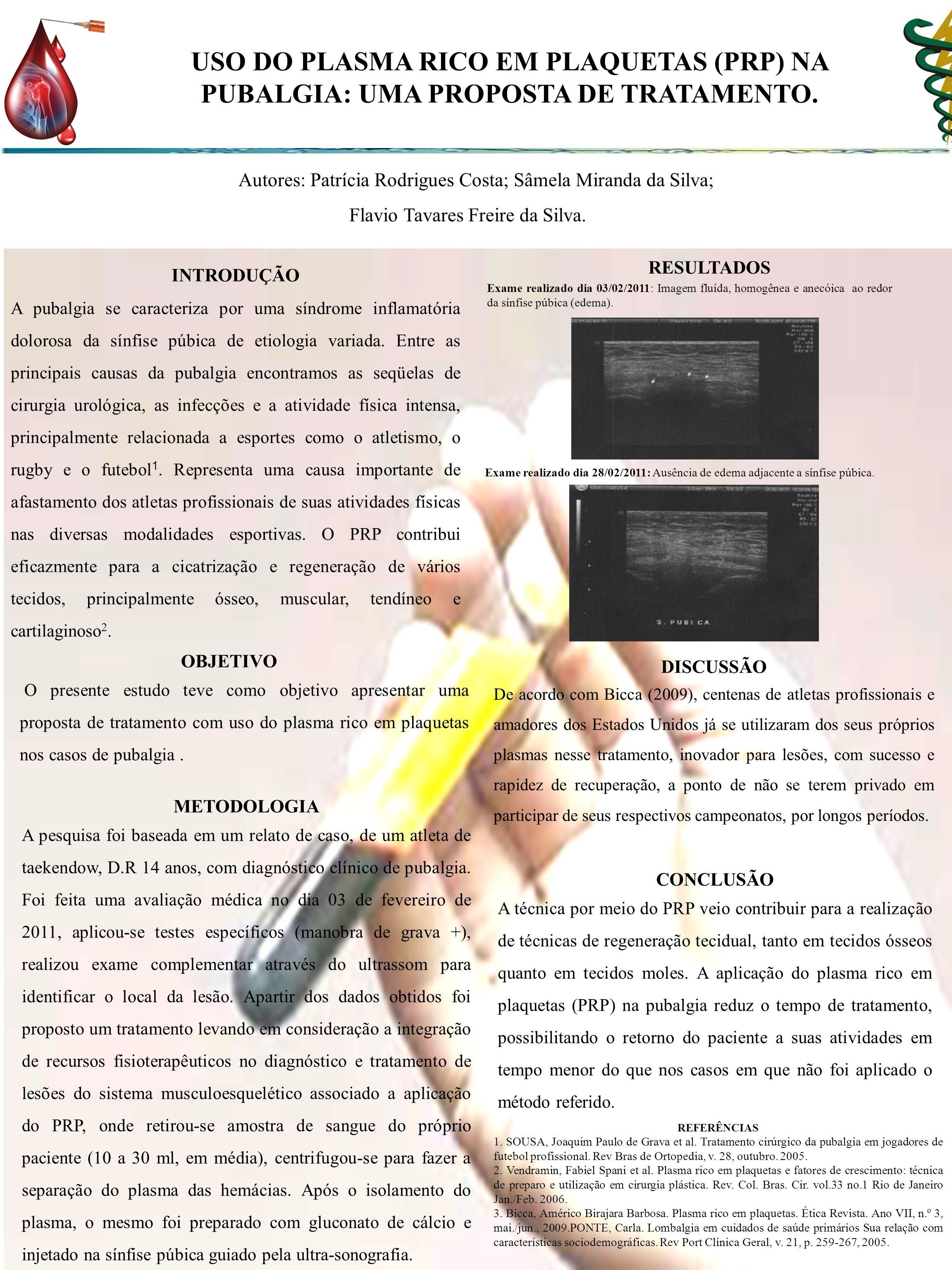 USO DO PLASMA RICO EM PLAQUETAS (PRP) NA PUBALGIA: UMA PROPOSTA DE TRATAMENTO.
