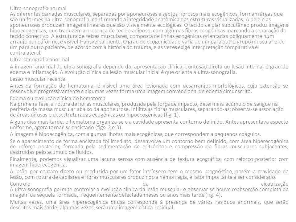 Ecograma: