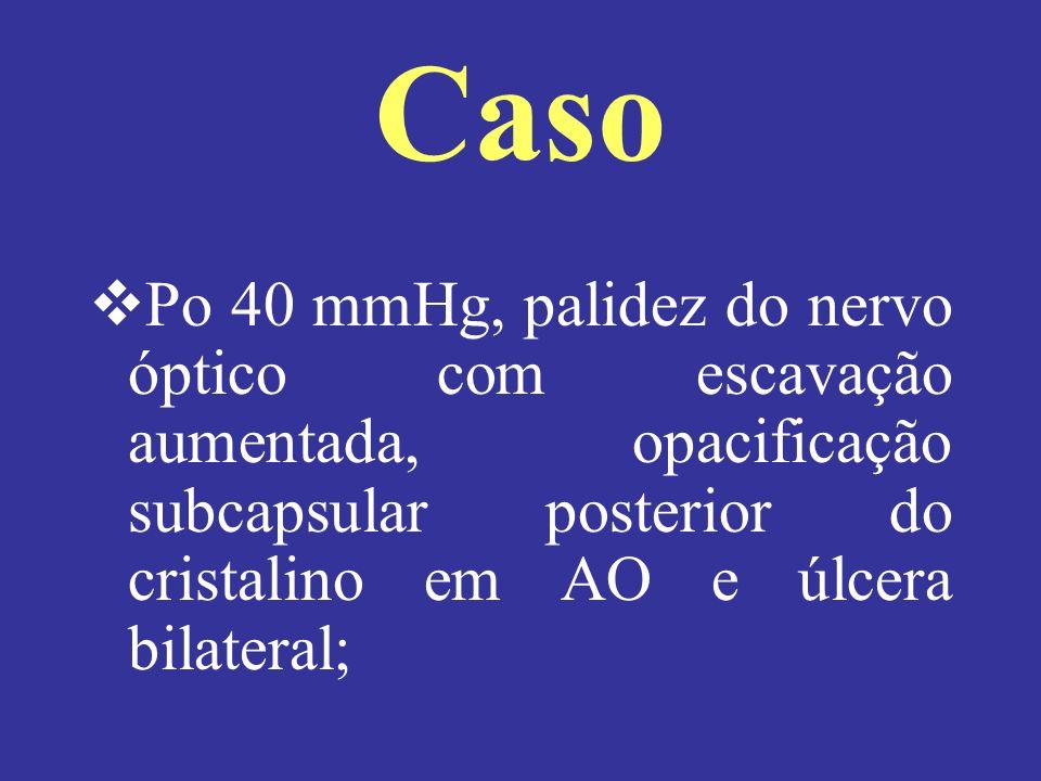 Caso Po 40 mmHg, palidez do nervo óptico com escavação aumentada, opacificação subcapsular posterior do cristalino em AO e úlcera bilateral;