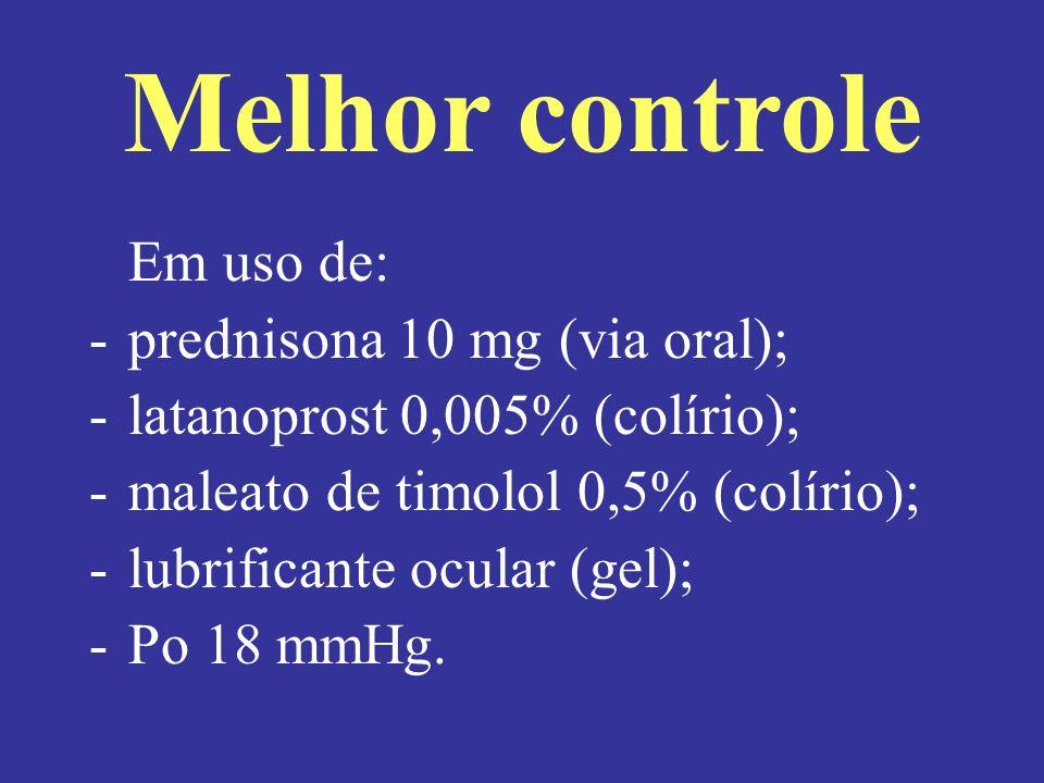 Melhor controle Em uso de: -prednisona 10 mg (via oral); -latanoprost 0,005% (colírio); -maleato de timolol 0,5% (colírio); -lubrificante ocular (gel); -Po 18 mmHg.