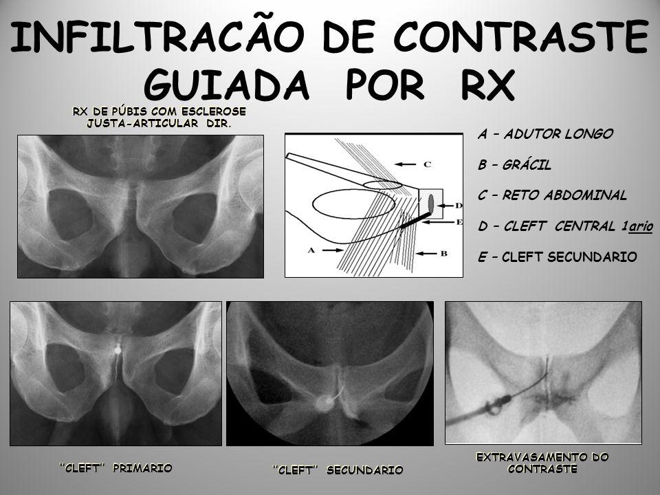 INFILTRACÃO DE CONTRASTE GUIADA POR RX RX DE PÚBIS COM ESCLEROSE JUSTA-ARTICULAR DIR.