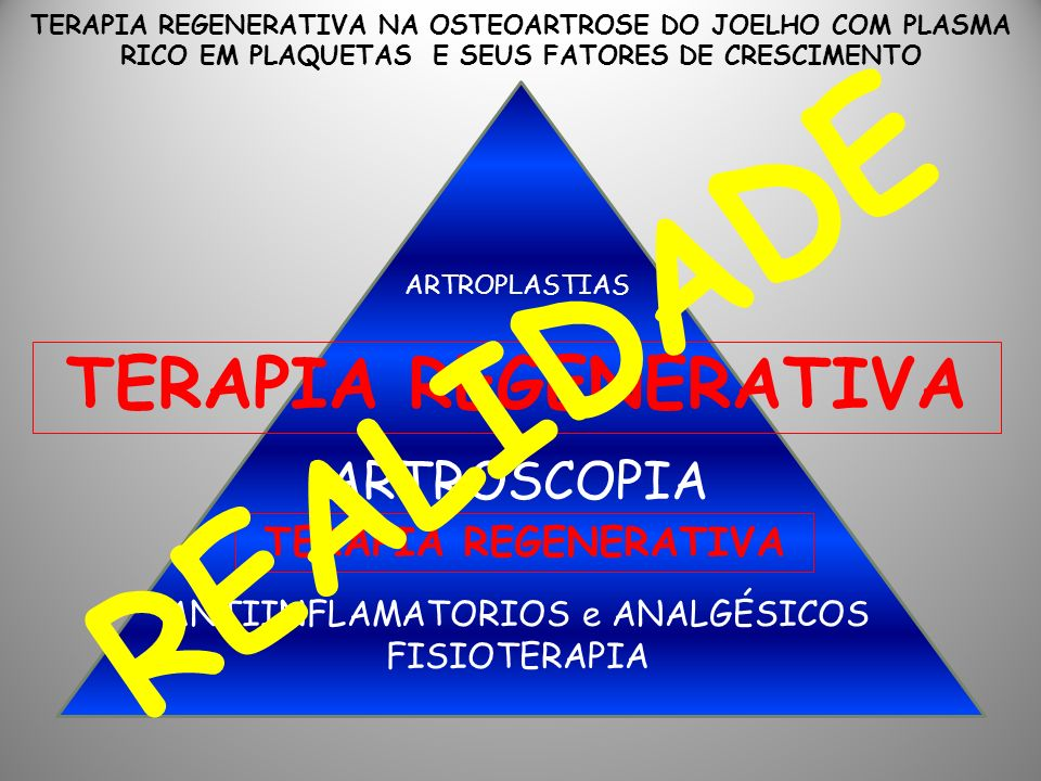 ANTIINFLAMATORIOS e ANALGÉSICOS FISIOTERAPIA ARTROSCOPIA ARTROPLASTIAS TERAPIA REGENERATIVA TERAPIA REGENERATIVA NA OSTEOARTROSE DO JOELHO COM PLASMA RICO EM PLAQUETAS E SEUS FATORES DE CRESCIMENTO REALIDADE