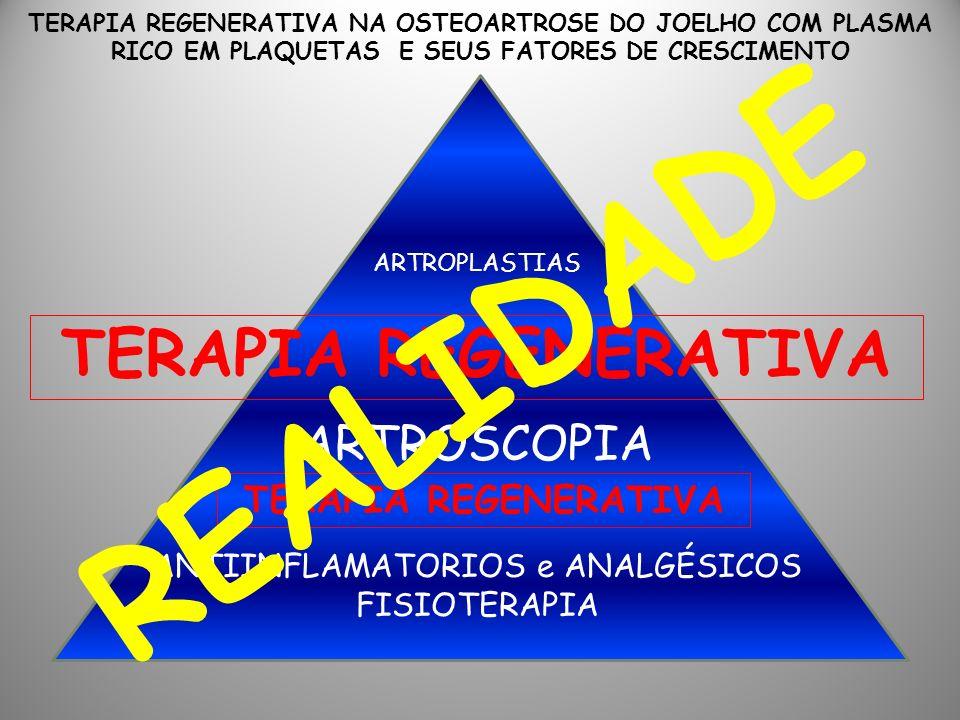 ANTIINFLAMATORIOS e ANALGÉSICOS FISIOTERAPIA ARTROSCOPIA ARTROPLASTIAS TERAPIA REGENERATIVA TERAPIA REGENERATIVA NA OSTEOARTROSE DO JOELHO COM PLASMA