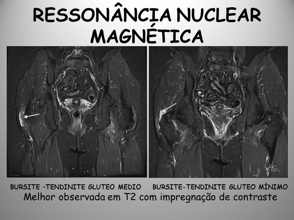 RESSONÂNCIA NUCLEAR MAGNÉTICA BURSITE –TENDINITE GLUTEO MEDIO BURSITE-TENDINITE GLUTEO MÍNIMO Melhor observada em T2 com impregnação de contraste