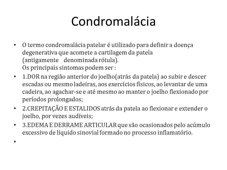 Condromalácia O termo condromalácia patelar é utilizado para definir a doença degenerativa que acomete a cartilagem da patela (antigamente denominada