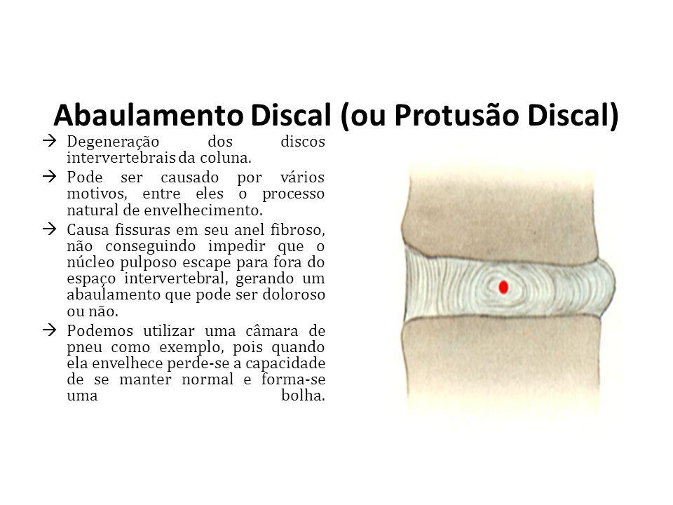 Abaulamento Discal (ou Protusão Discal) Degeneração dos discos intervertebrais da coluna. Pode ser causado por vários motivos, entre eles o processo n