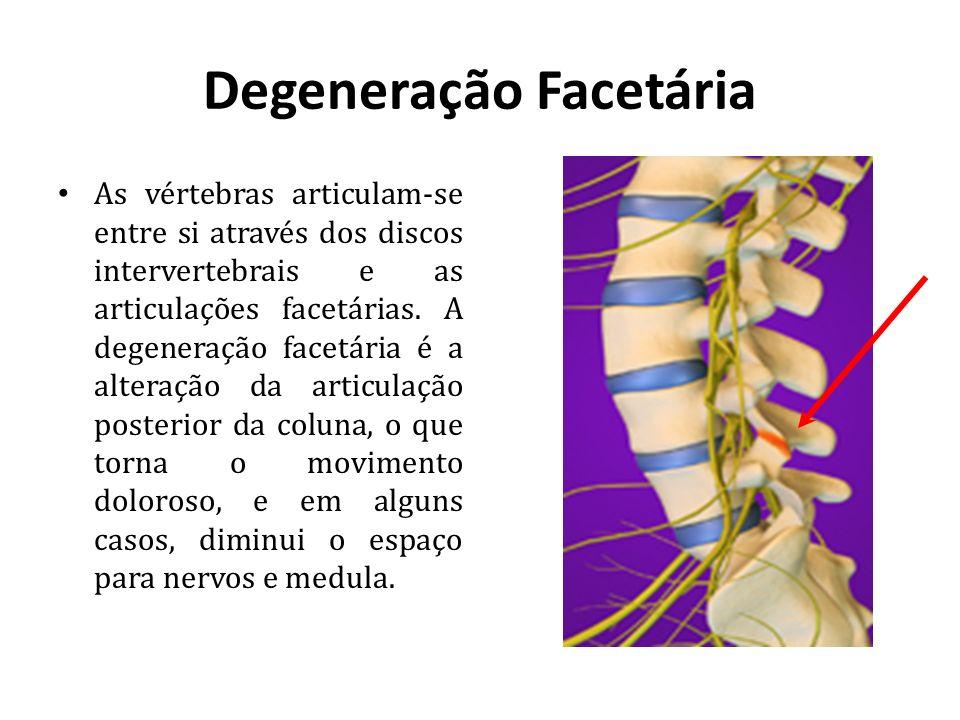 Degeneração Facetária As vértebras articulam-se entre si através dos discos intervertebrais e as articulações facetárias. A degeneração facetária é a