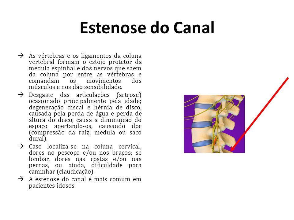 Estenose do Canal As vértebras e os ligamentos da coluna vertebral formam o estojo protetor da medula espinhal e dos nervos que saem da coluna por ent