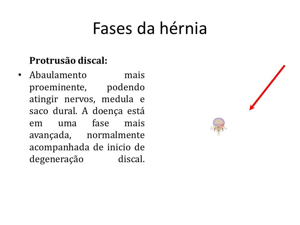 Fases da hérnia Protrusão discal: Abaulamento mais proeminente, podendo atingir nervos, medula e saco dural. A doença está em uma fase mais avançada,