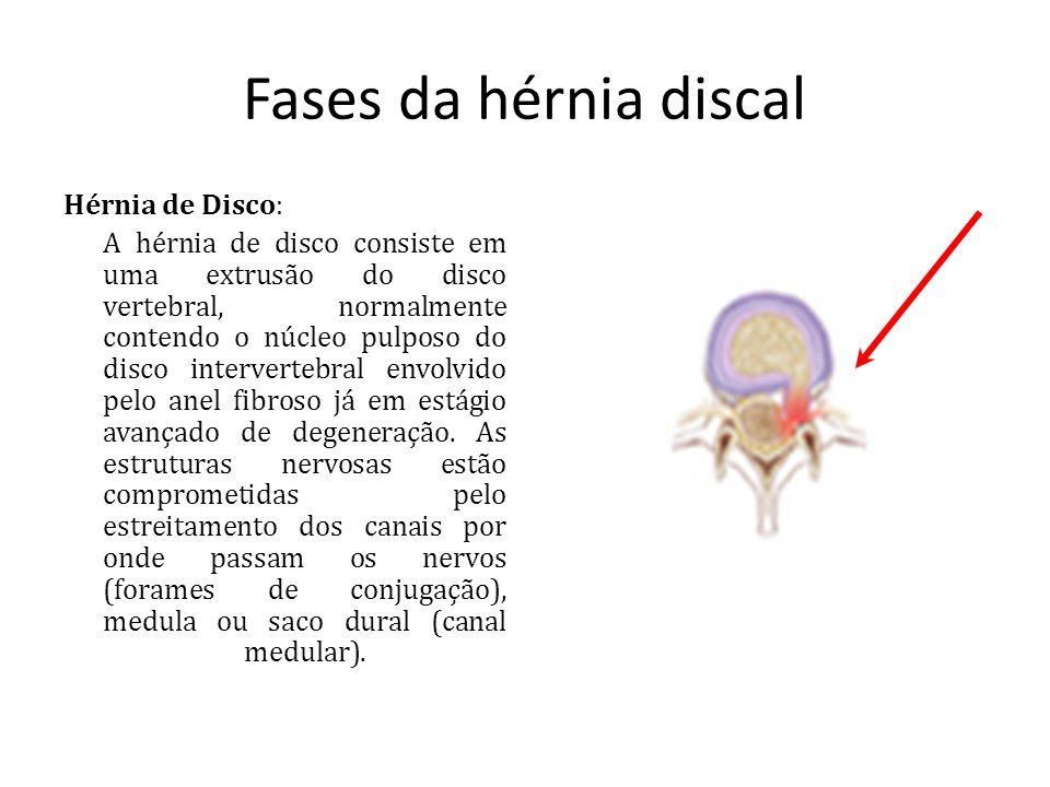 Fases da hérnia discal Hérnia de Disco: A hérnia de disco consiste em uma extrusão do disco vertebral, normalmente contendo o núcleo pulposo do disco