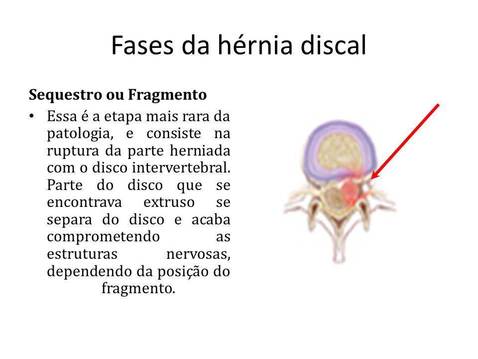 Fases da hérnia discal Sequestro ou Fragmento Essa é a etapa mais rara da patologia, e consiste na ruptura da parte herniada com o disco intervertebra