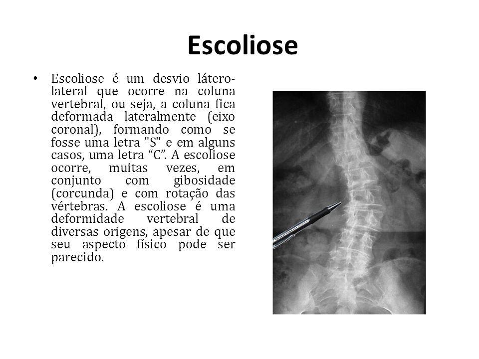 Escoliose Escoliose é um desvio látero- lateral que ocorre na coluna vertebral, ou seja, a coluna fica deformada lateralmente (eixo coronal), formando