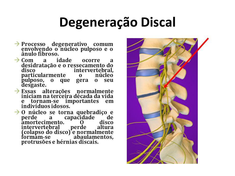 Degeneração Discal Processo degenerativo comum envolvendo o núcleo pulposo e o ânulo fibroso. Com a idade ocorre a desidratação e o ressecamento do di