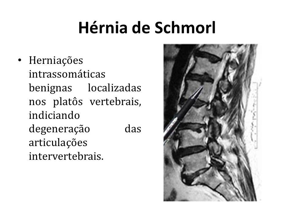 Hérnia de Schmorl Herniações intrassomáticas benignas localizadas nos platôs vertebrais, indiciando degeneração das articulações intervertebrais.