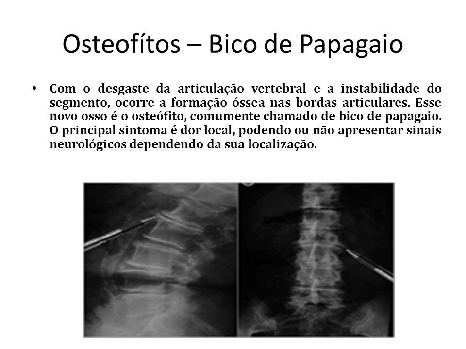Osteofítos – Bico de Papagaio Com o desgaste da articulação vertebral e a instabilidade do segmento, ocorre a formação óssea nas bordas articulares. E