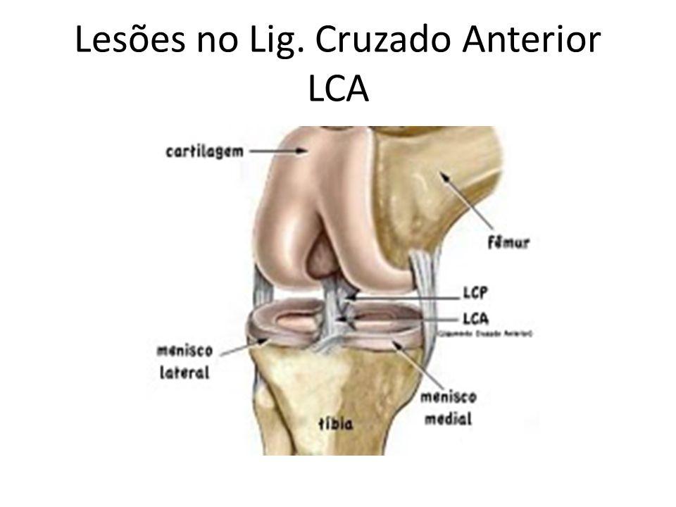 Lesões no Lig. Cruzado Anterior LCA